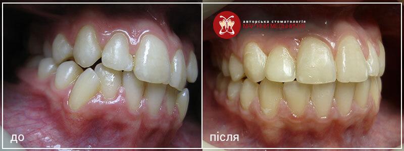 ортодонтичне лікування до і після