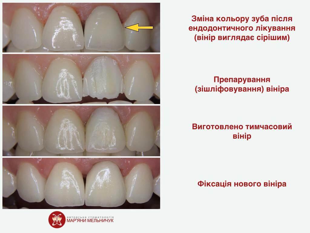 етапи встановлення вінірів