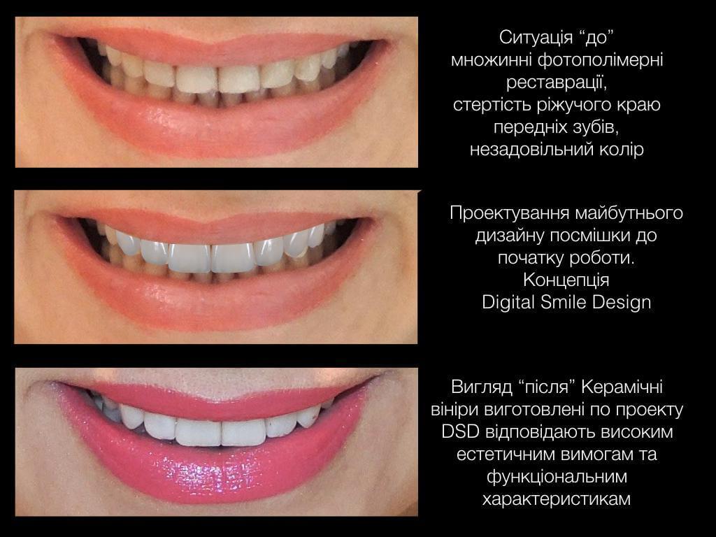 етапи корекції зубів design smile