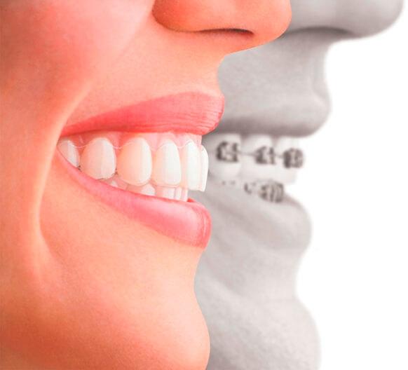 брекети пластинки для вирівнювання зубів
