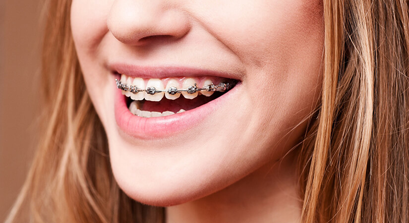 брекети для вирівнювання зубів